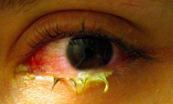 indian home remedies for conjunctivitis